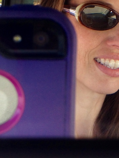 Invisalign: A Second Opinion is Necessary