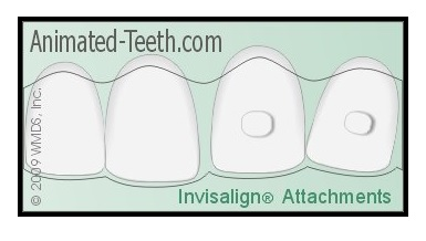 Invisalign Update: Removing Attachments and Assessing the Treatment